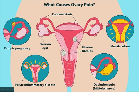 درمان درد تخمدان در بارداری, درد تخمدان در اوایل بارداری, علت درد تخمدان ,درد تخمدان در اوایل بارداری: علل و درمان های خانگی,pregnancy ovary pain,